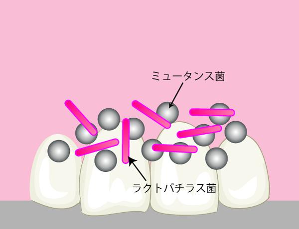 歯には色んな菌が混在