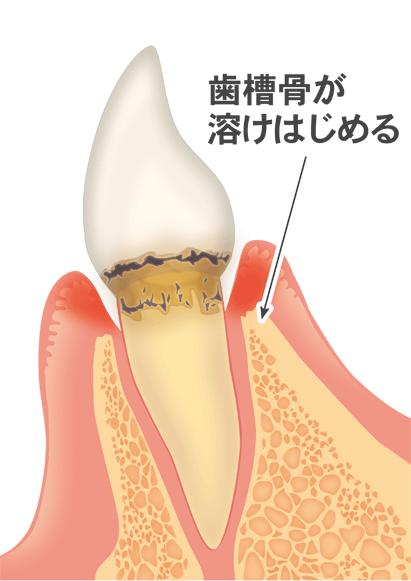 歯周炎(中期・後期歯周病)